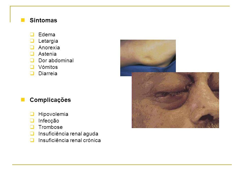 Sintomas Edema Letargia Anorexia Astenia Dor abdominal Vómitos Diarreia Complicações Hipovolemia Infecção Trombose Insuficiência renal aguda Insuficiê