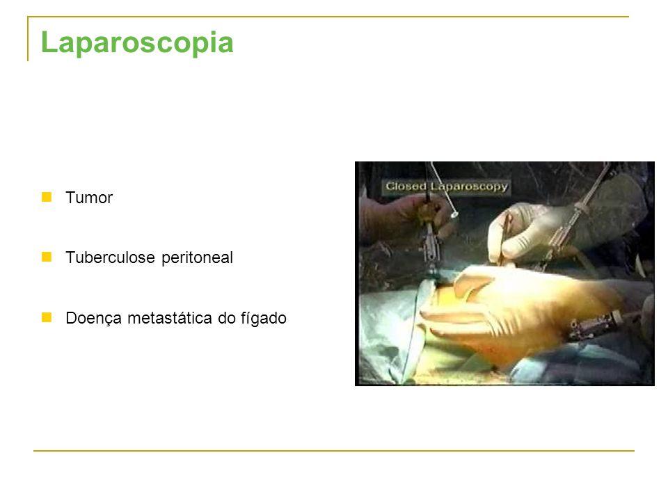 Laparoscopia Tumor Tuberculose peritoneal Doença metastática do fígado