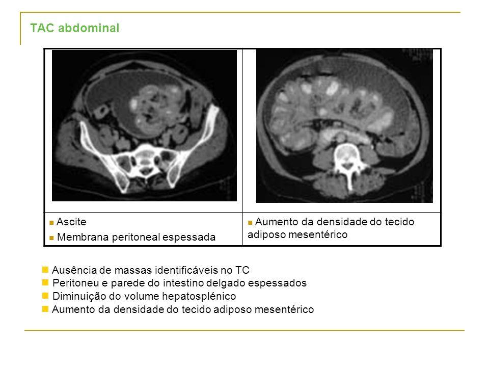 TAC abdominal Ascite Membrana peritoneal espessada Aumento da densidade do tecido adiposo mesentérico Ausência de massas identificáveis no TC Peritone