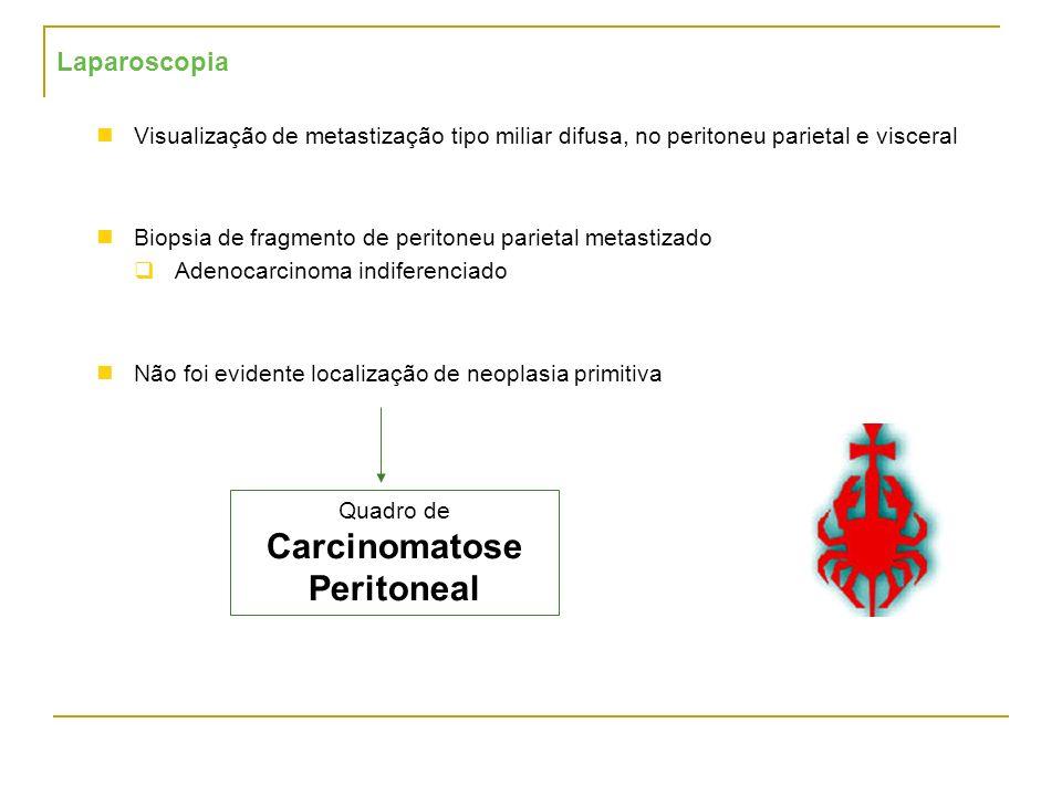 Laparoscopia Visualização de metastização tipo miliar difusa, no peritoneu parietal e visceral Biopsia de fragmento de peritoneu parietal metastizado