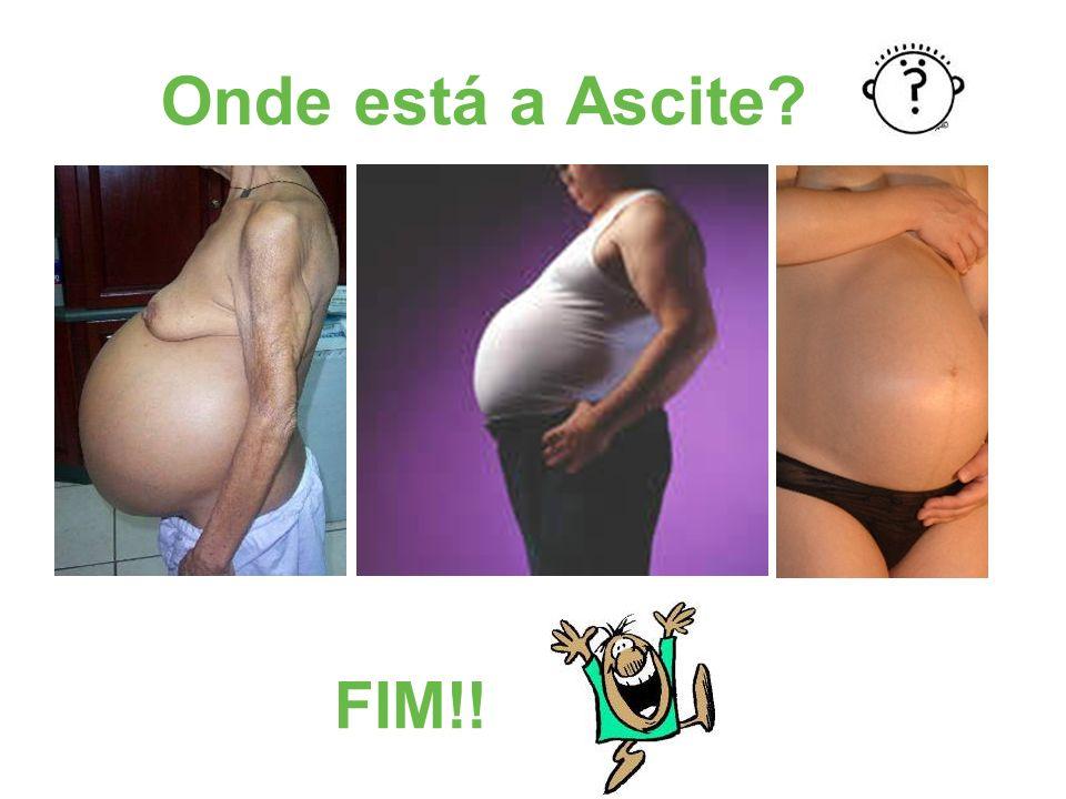 Onde está a Ascite? FIM!!