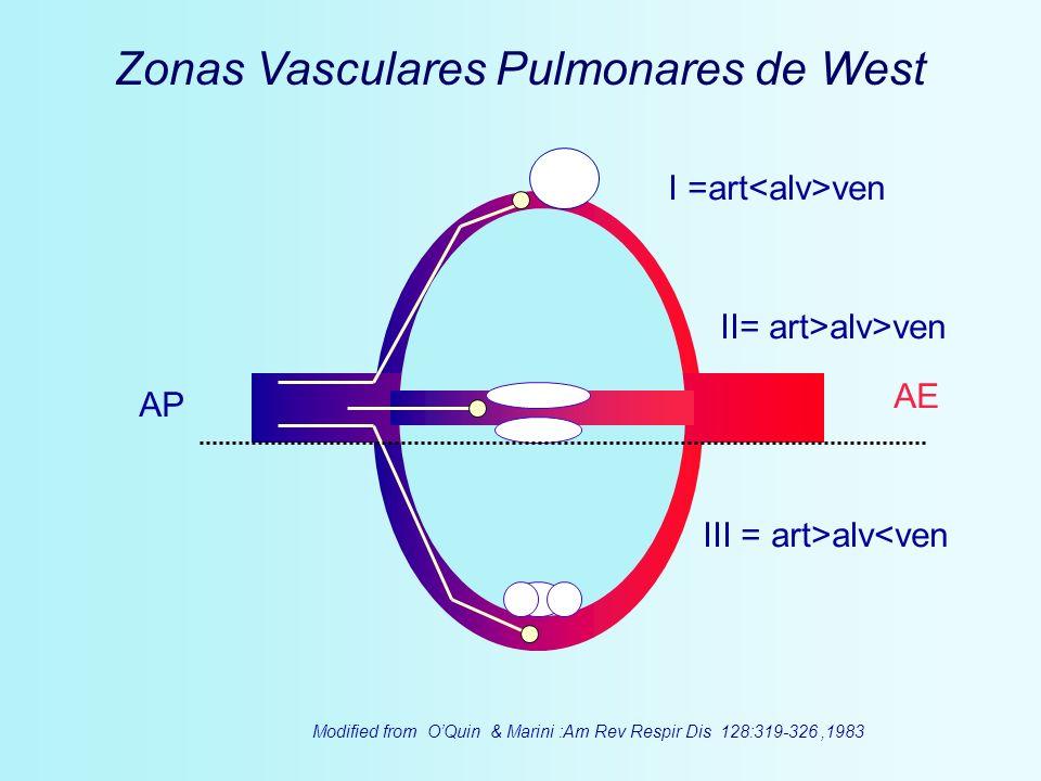 AP AE I =art ven II= art>alv>ven III = art>alv<ven Zonas Vasculares Pulmonares de West Modified from OQuin & Marini :Am Rev Respir Dis 128:319-326,198