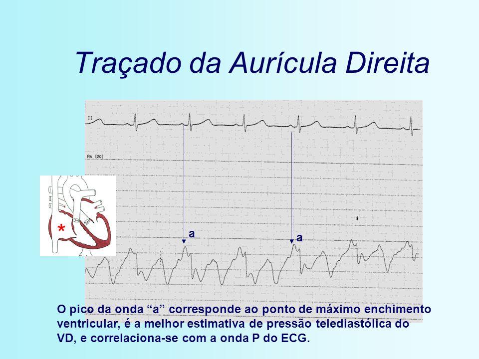 Traçado da Aurícula Direita * a a O pico da onda a corresponde ao ponto de máximo enchimento ventricular, é a melhor estimativa de pressão telediastól