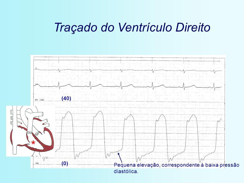 Traçado do Ventrículo Direito (0) (40) * Pequena elevação, correspondente à baixa pressão diastólica.