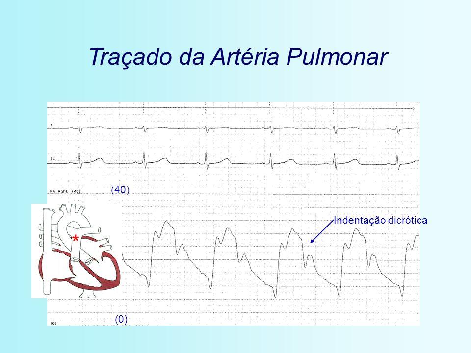 Traçado da Artéria Pulmonar (0) (40) * Indentação dicrótica