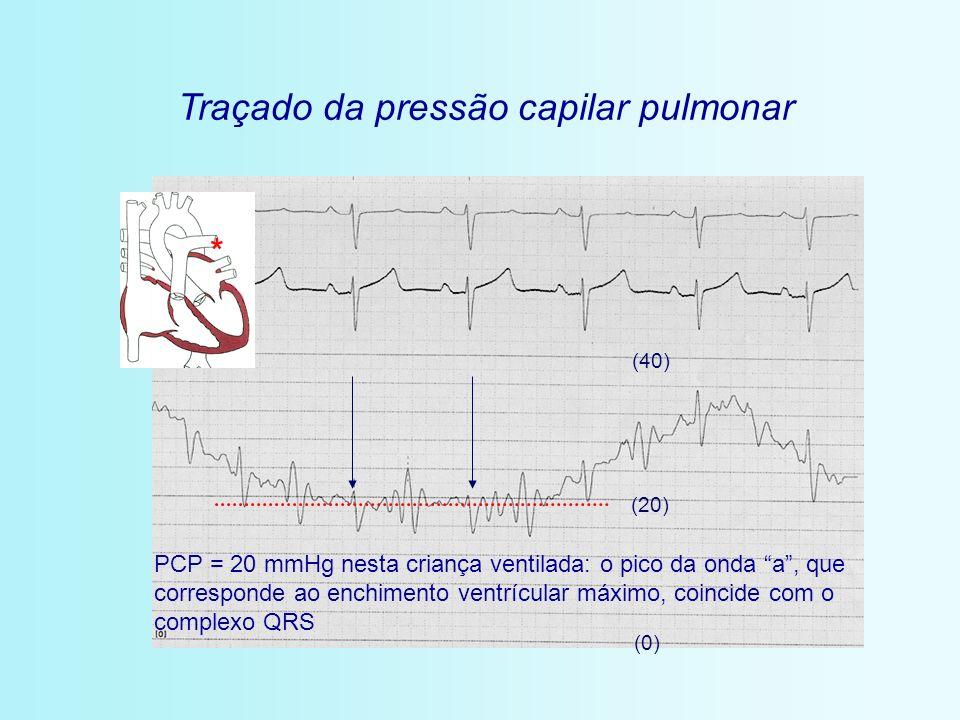 * Traçado da pressão capilar pulmonar (0) (20) (40) PCP = 20 mmHg nesta criança ventilada: o pico da onda a, que corresponde ao enchimento ventrícular