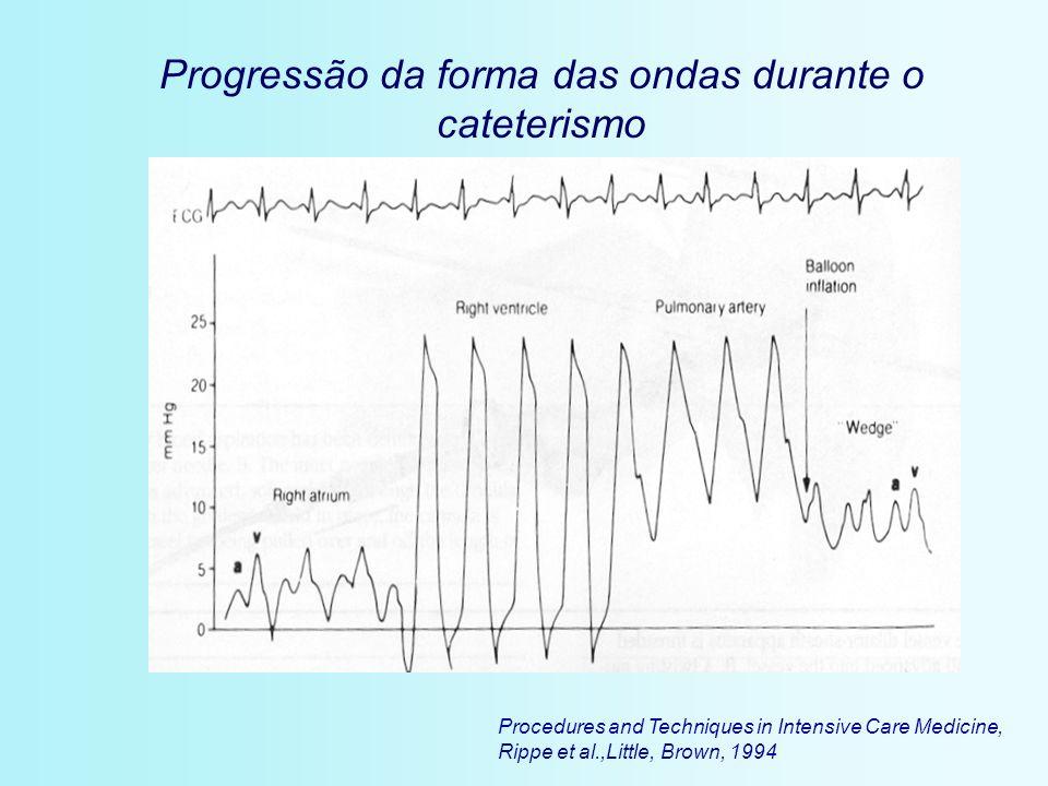 Procedures and Techniques in Intensive Care Medicine, Rippe et al.,Little, Brown, 1994 Progressão da forma das ondas durante o cateterismo