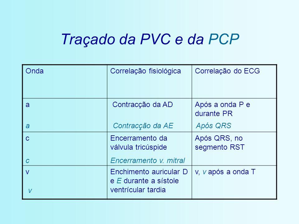 Traçado da PVC e da PCP OndaCorrelação fisiológicaCorrelação do ECG a Contracção da ADApós a onda P e durante PR cEncerramento da válvula tricúspide A