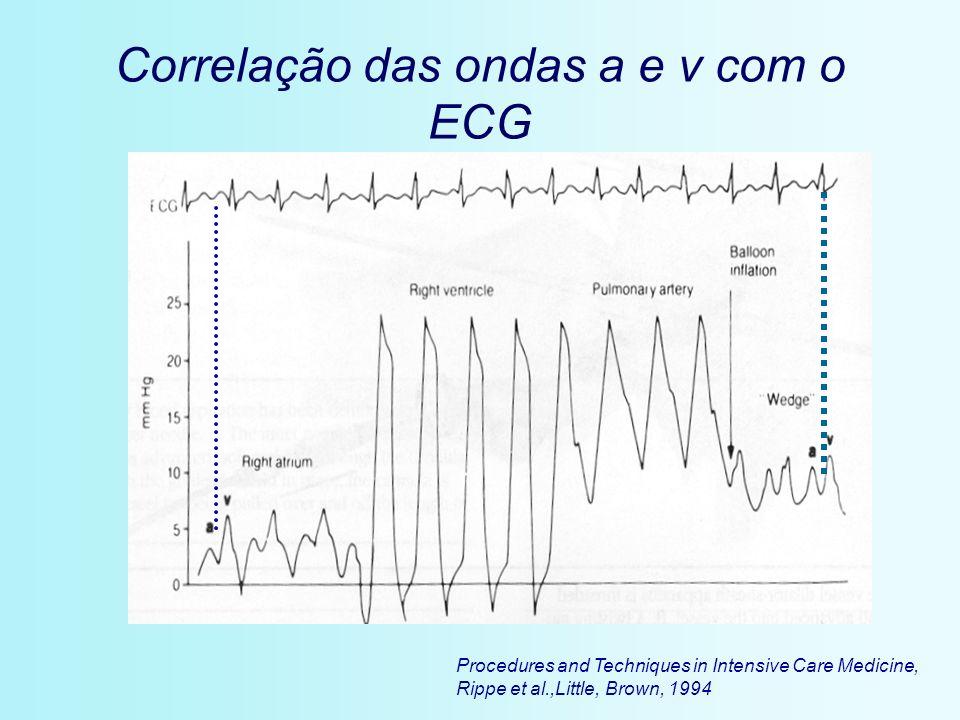 Procedures and Techniques in Intensive Care Medicine, Rippe et al.,Little, Brown, 1994 Correlação das ondas a e v com o ECG