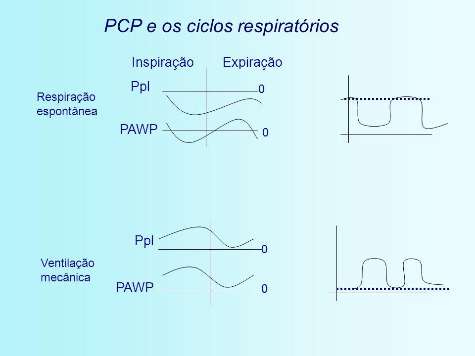Respiração espontânea Ventilação mecânica InspiraçãoExpiração Ppl PAWP Ppl PAWP 0 0 0 0 PCP e os ciclos respiratórios