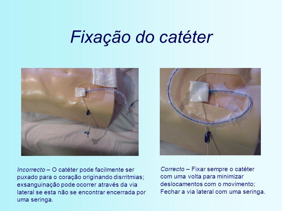 Fixação do catéter Incorrecto – O catéter pode facilmente ser puxado para o coração originando disrritmias; exsanguinação pode ocorrer através da via