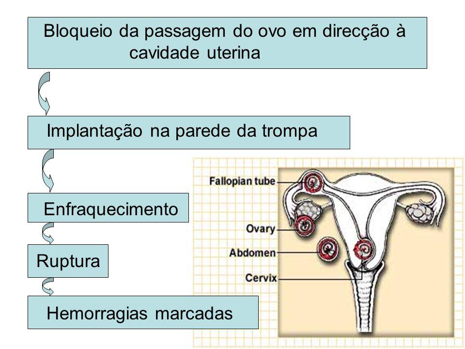 GRAVIDEZ ECTÓPICA 2% das gravidezes Trompas de Falópio (porção ampolar)– 95% Abdómen, Ovário, Colo do útero Factores de risco: –Antecedentes pessoais de gravidez ectópica –Antecedentes de cirurgia pélvica –DIP –Infertilidade –Fertilização in vitro –Uso de DIU –Tabagismo –Idade avançada Doentes inférteis submetidas a técnicas de Fertilização in vitro Risco aumentado