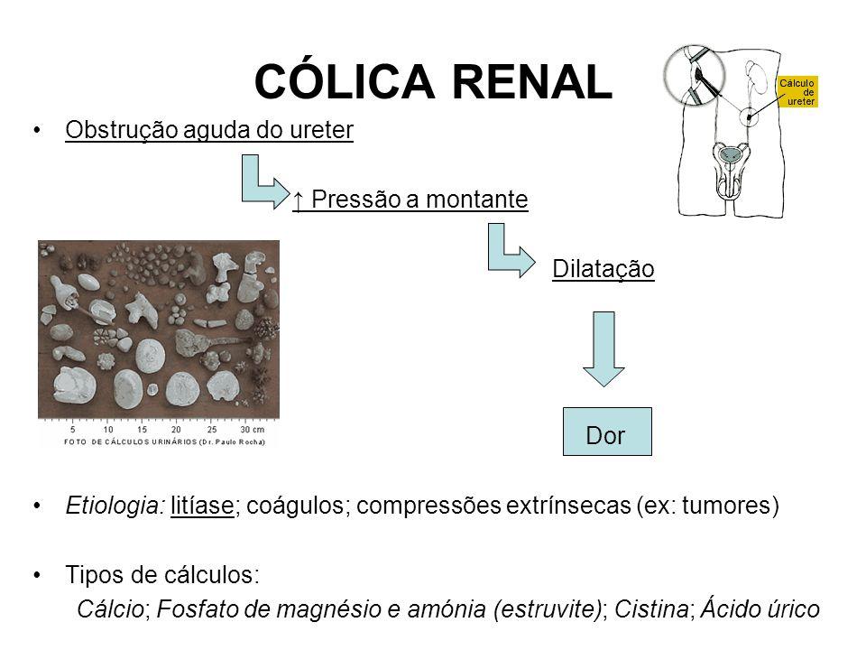 CÓLICA RENAL Obstrução aguda do ureter Pressão a montante Dilatação Dor Etiologia: litíase; coágulos; compressões extrínsecas (ex: tumores) Tipos de cálculos: Cálcio; Fosfato de magnésio e amónia (estruvite); Cistina; Ácido úrico