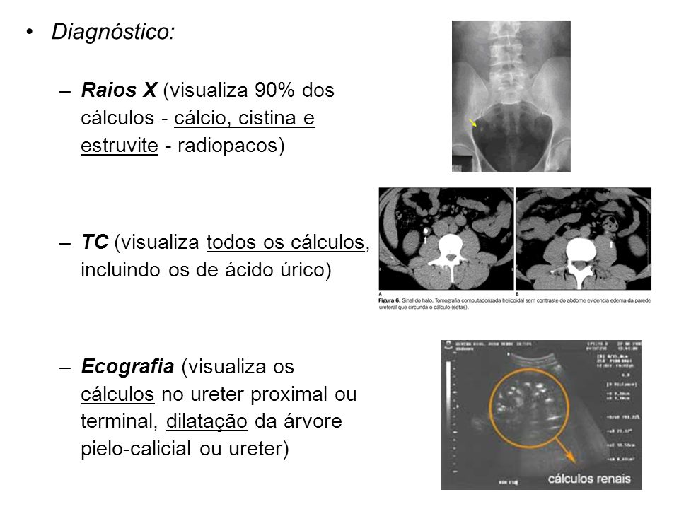 Diagnóstico: –Raios X (visualiza 90% dos cálculos - cálcio, cistina e estruvite - radiopacos) –TC (visualiza todos os cálculos, incluindo os de ácido úrico) –Ecografia (visualiza os cálculos no ureter proximal ou terminal, dilatação da árvore pielo-calicial ou ureter)