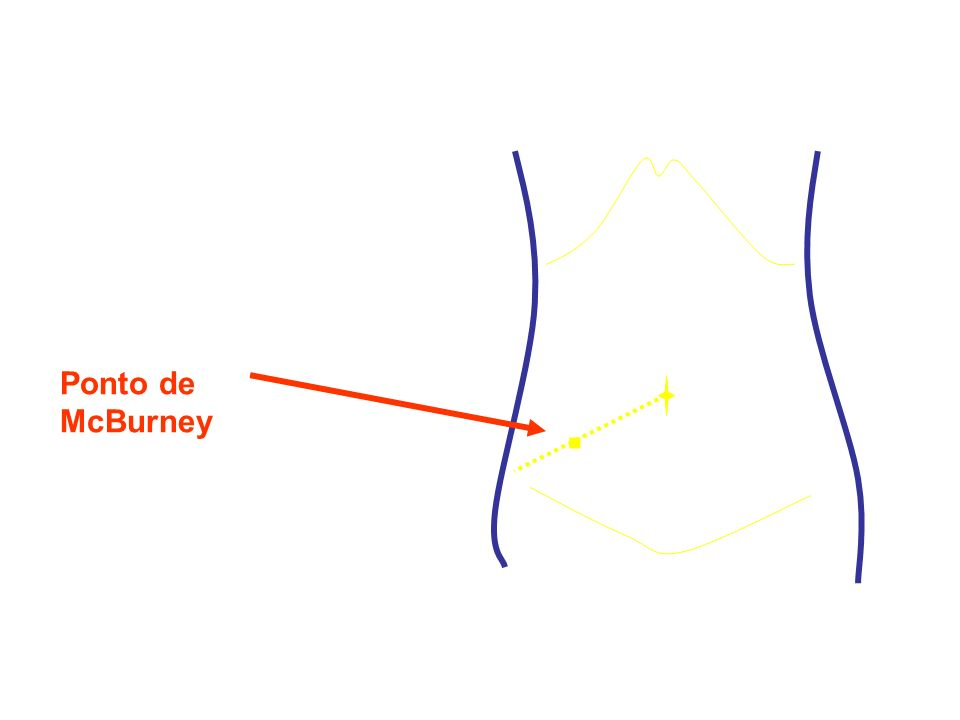 SINAIS: Sinais Vitais – alterações mínimas (febre baixa 37,7º - 38,3º, ligeiro FC e FR) Inspecção: movimentos respiratórios abdominais Palpação e manobras: - Dor à palpação – Ponto McBurney - Dor à descompressão - Manobra de Blumberg - Defesa muscular vs contractura - Sinal Rovsing - Hiperestesia cutânea T10-T12 Percussão: Dor à percussão Auscultação: ou ausência ruídos intestinais MANIFESTAÇÕES CLÍNICAS