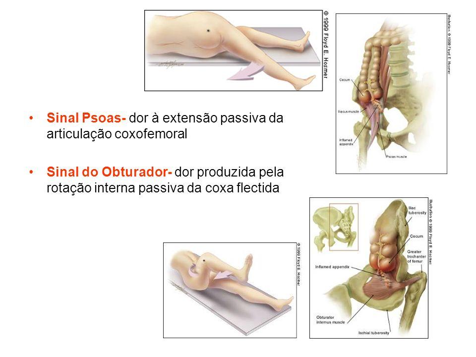 Sinal Psoas- dor à extensão passiva da articulação coxofemoral Sinal do Obturador- dor produzida pela rotação interna passiva da coxa flectida