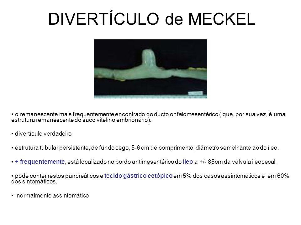 DIVERTÍCULO de MECKEL o remanescente mais frequentemente encontrado do ducto onfalomesentérico ( que, por sua vez, é uma estrutura remanescente do saco vitelino embrionário).