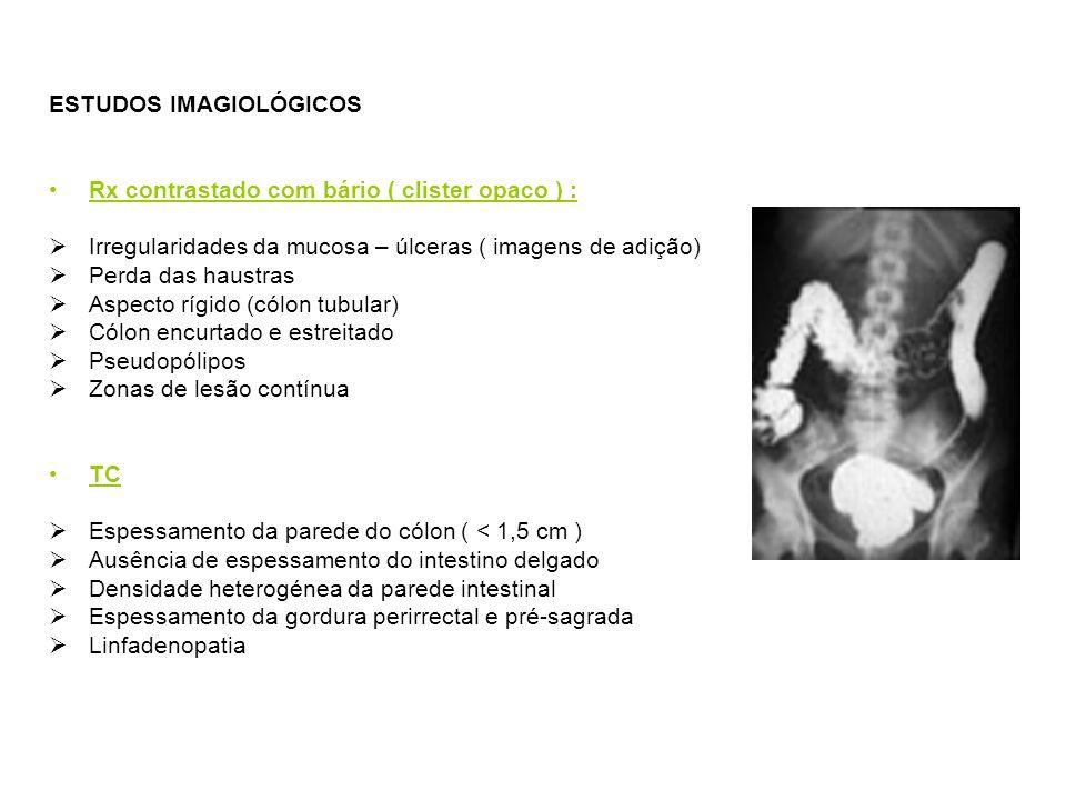 ESTUDOS IMAGIOLÓGICOS Rx contrastado com bário ( clister opaco ) : Irregularidades da mucosa – úlceras ( imagens de adição) Perda das haustras Aspecto rígido (cólon tubular) Cólon encurtado e estreitado Pseudopólipos Zonas de lesão contínua TC Espessamento da parede do cólon ( < 1,5 cm ) Ausência de espessamento do intestino delgado Densidade heterogénea da parede intestinal Espessamento da gordura perirrectal e pré-sagrada Linfadenopatia