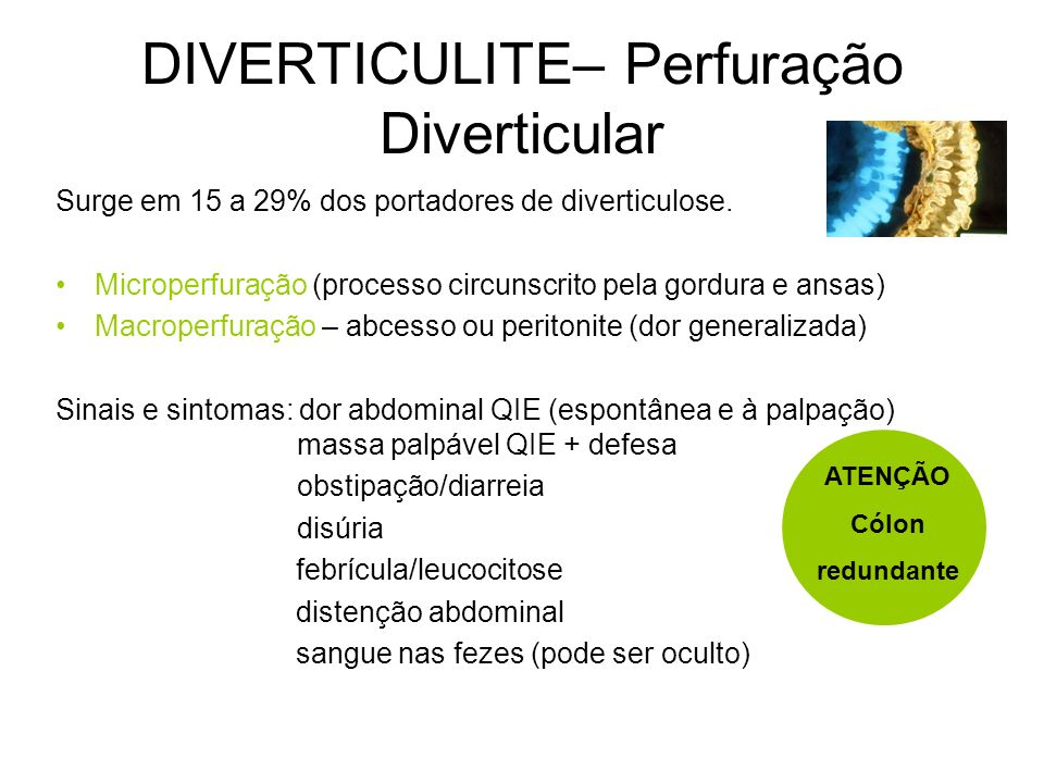 DIVERTICULOSE Factores: Elastose pós 50A - distensão Dieta pobre em fibras vegetais pressão intracólica (sigmóide-+estreito) Contracções segmentares A