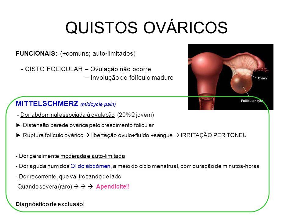 QUISTOS OVÁRICOS MITTELSCHMERZ (midcycle pain) - Dor abdominal associada à ovulação (20% jovem) Distensão parede ovárica pelo crescimento folicular Ruptura folículo ovárico libertação óvulo+fluído +sangue IRRITAÇÃO PERITONEU - Dor geralmente moderada e auto-limitada - Dor aguda num dos QI do abdómen, a meio do ciclo menstrual, com duração de minutos-horas - Dor recorrente, que vai trocando de lado -Quando severa (raro) Apendicite!.