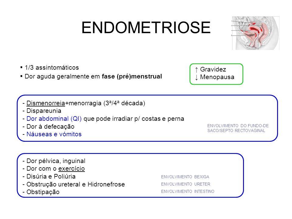 ENDOMETRIOSE Presença e proliferação de tecido endometrial fora da cavidade uterina Reacção inflamatória crónica Pélvica (ovários, trompas, vagina, ligamentos uterossagrados, septo recto- vaginal…) 25-30A Extra pélvica – disseminação linfática/vascular (pulmão, pleura, baço…) 35-40A - Menstruação retrógada - Metaplasia Celómica (mesotélio peritoneal tecido reprodutivo) - Células mullerianas remanescentes - Metástases linfáticas/vasculares - Deposição iatrogénica - Predisposição genética