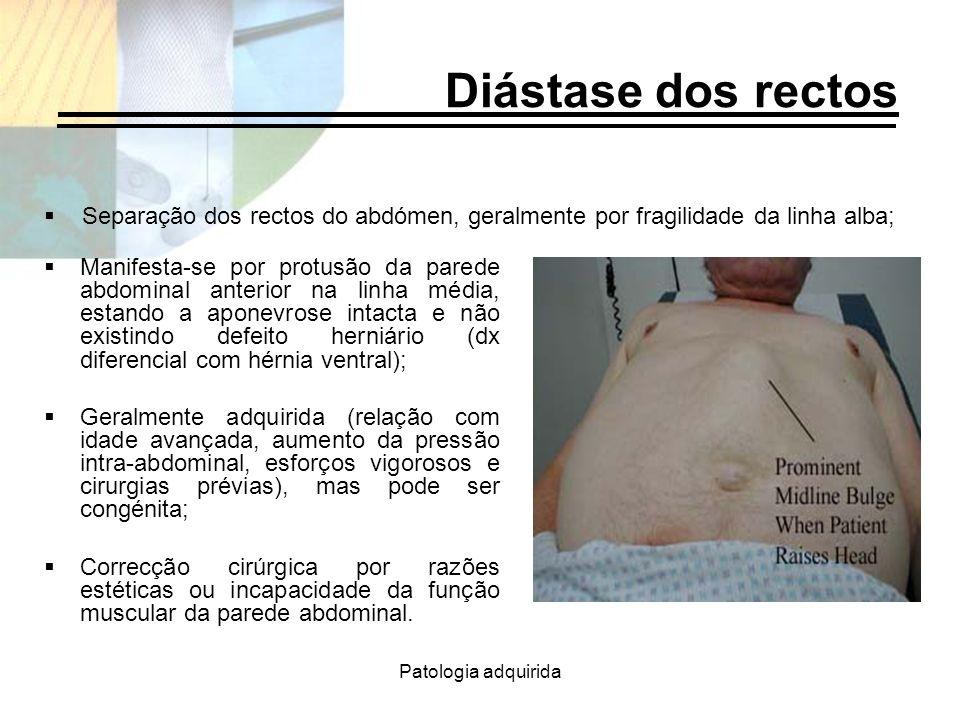 Patologia adquirida Diástase dos rectos Manifesta-se por protusão da parede abdominal anterior na linha média, estando a aponevrose intacta e não exis