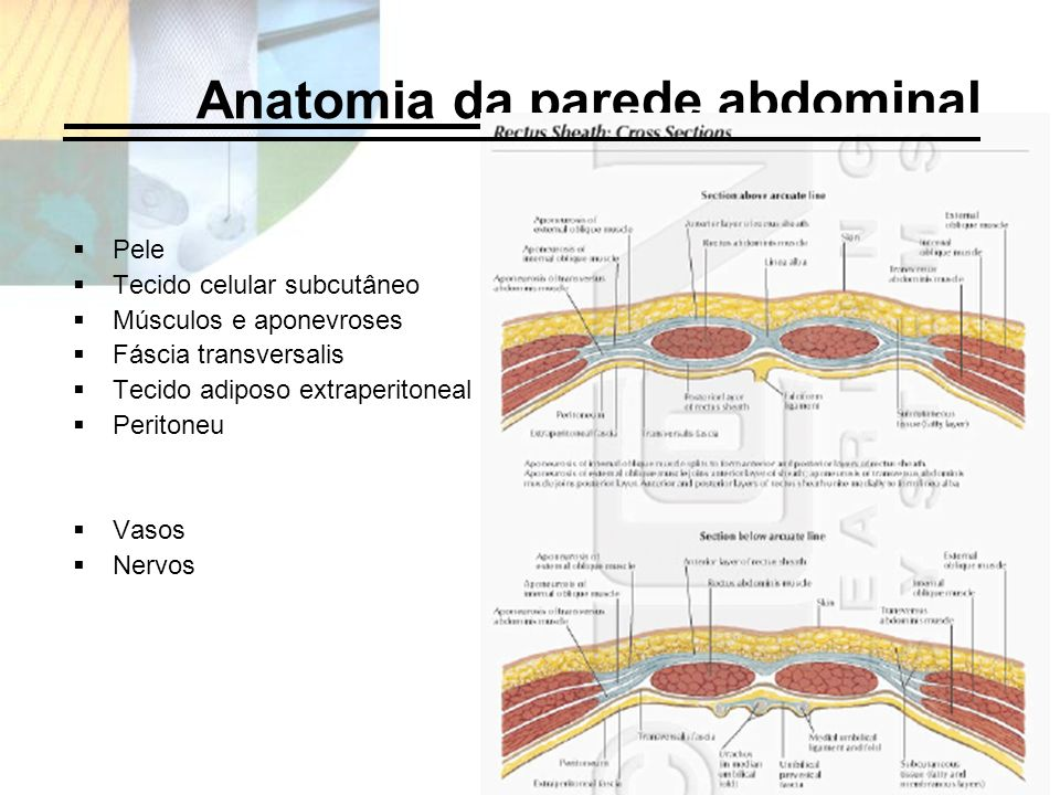 Anatomia da parede abdominal Pele Tecido celular subcutâneo Músculos e aponevroses Fáscia transversalis Tecido adiposo extraperitoneal Peritoneu Vasos