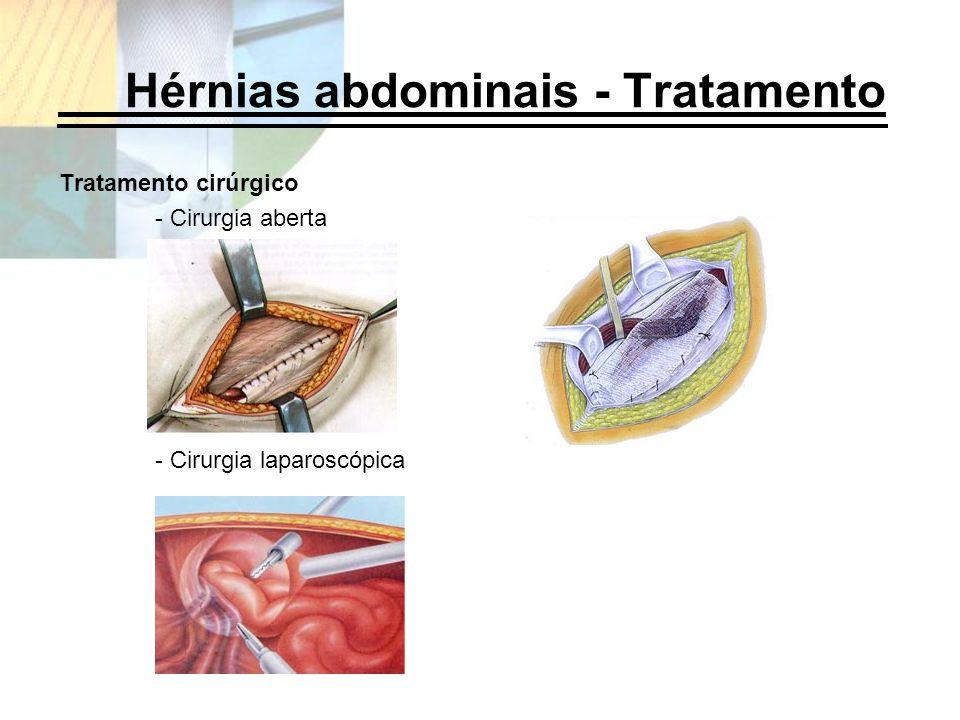 Hérnias abdominais - Tratamento Tratamento cirúrgico - Cirurgia aberta - Cirurgia laparoscópica