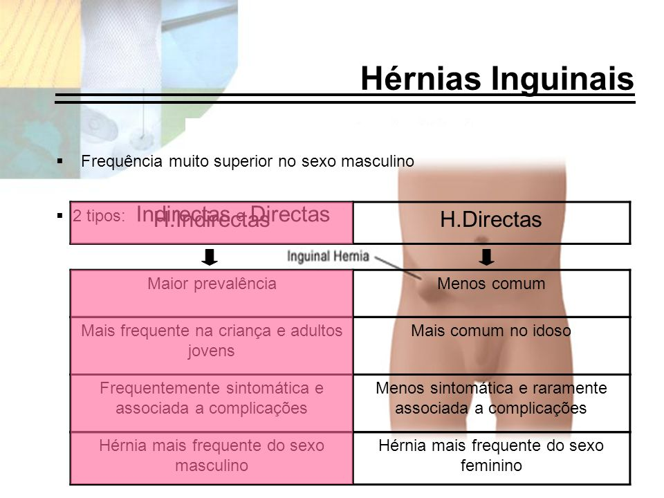 Hérnias Inguinais Frequência muito superior no sexo masculino Maior prevalênciaMenos comum Frequentemente sintomática e associada a complicações Menos