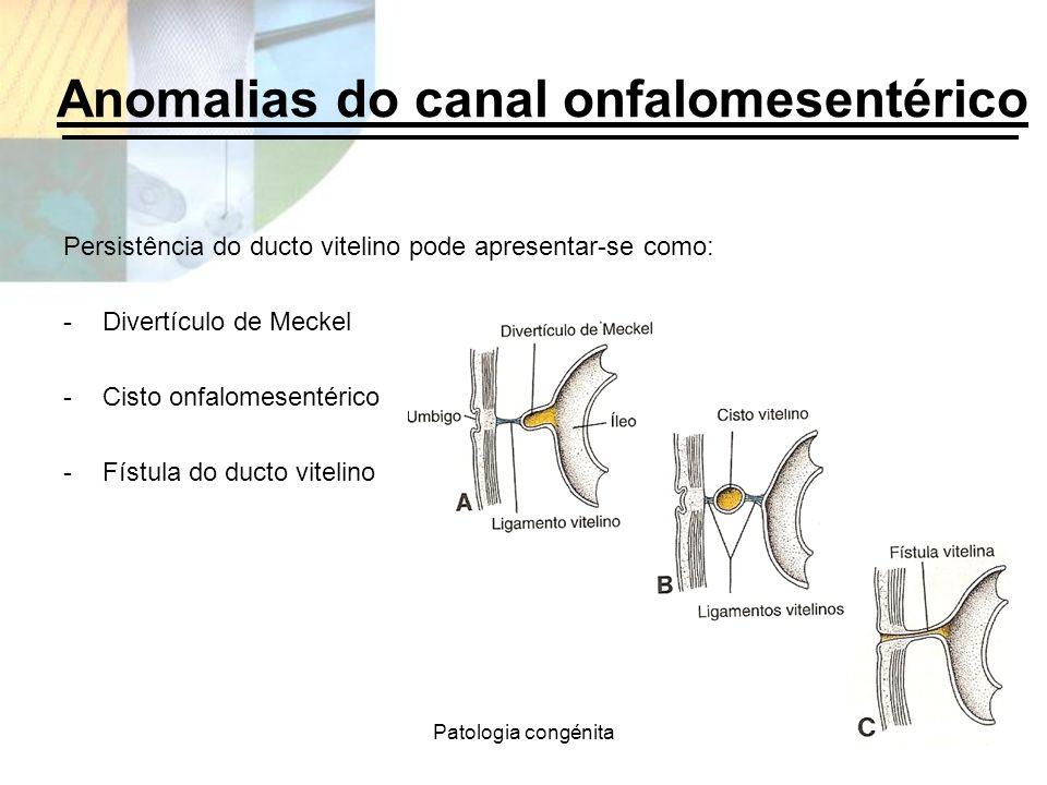 Patologia congénita Anomalias do canal onfalomesentérico Persistência do ducto vitelino pode apresentar-se como: -Divertículo de Meckel -Cisto onfalom
