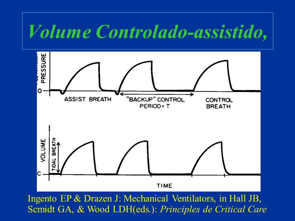 Volume Controlado-assistido, Ingento EP & Drazen J: Mechanical Ventilators, in Hall JB, Scmidt GA, & Wood LDH(eds.): Principles de Critical Care