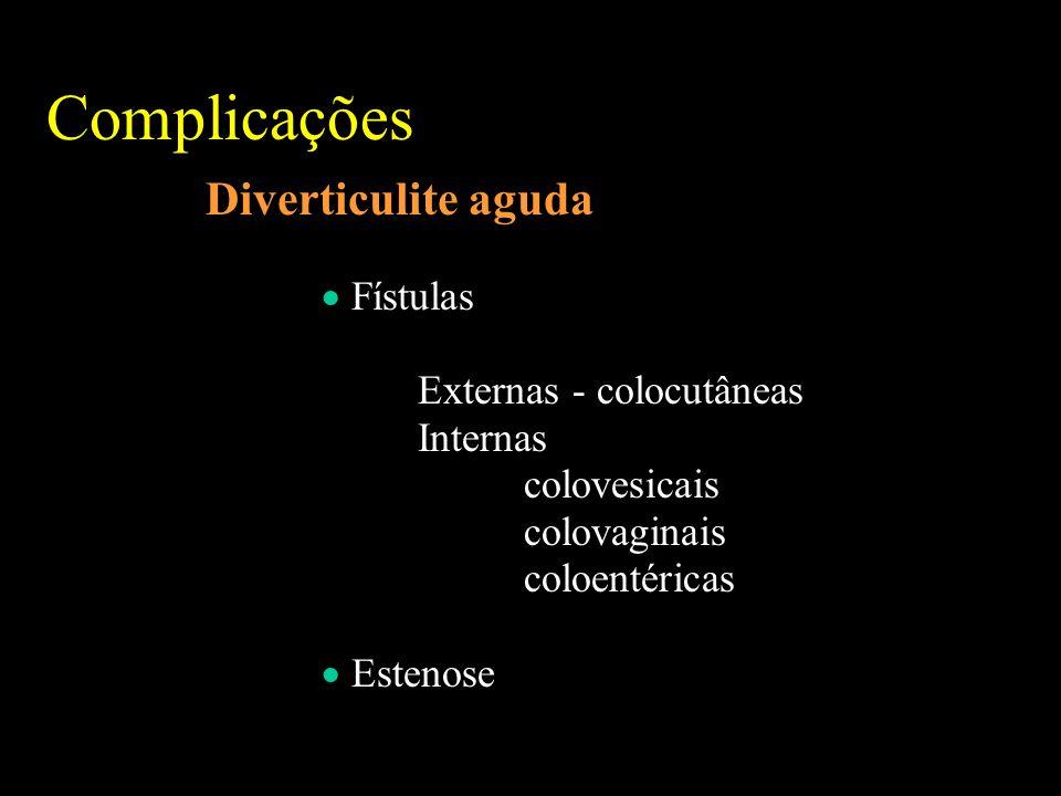 Complicações Diverticulite aguda Fístulas Externas - colocutâneas Internas colovesicais colovaginais coloentéricas Estenose