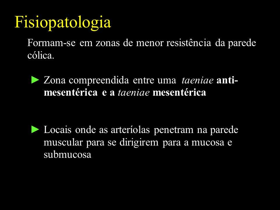 Fisiopatologia Formam-se em zonas de menor resistência da parede cólica.
