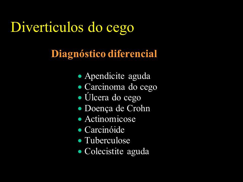 Diverticulos do cego Diagnóstico diferencial Apendicite aguda Carcinoma do cego Úlcera do cego Doença de Crohn Actinomicose Carcinóide Tuberculose Colecistite aguda