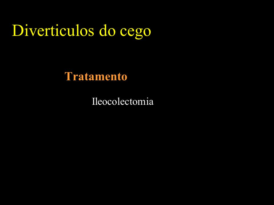 Diverticulos do cego Tratamento Ileocolectomia