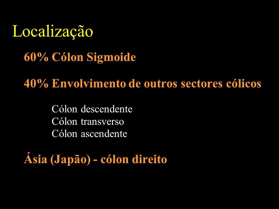 Localização 60% Cólon Sigmoide 40% Envolvimento de outros sectores cólicos Cólon descendente Cólon transverso Cólon ascendente Ásia (Japão) - cólon direito