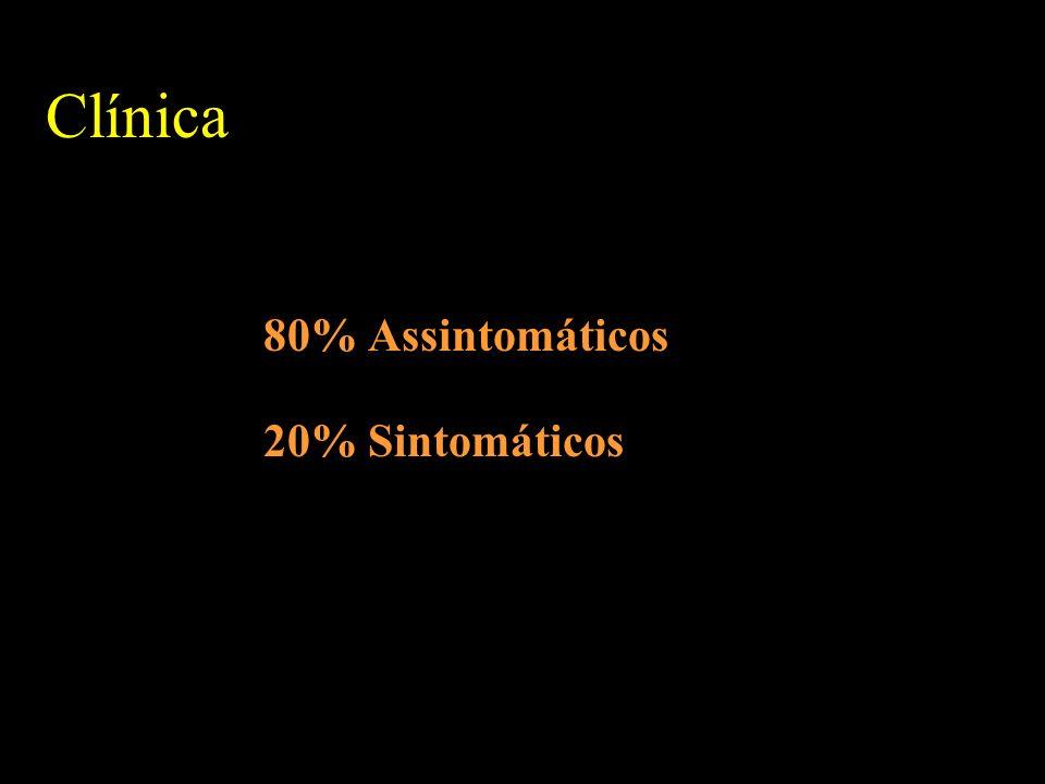 Clínica 80% Assintomáticos 20% Sintomáticos