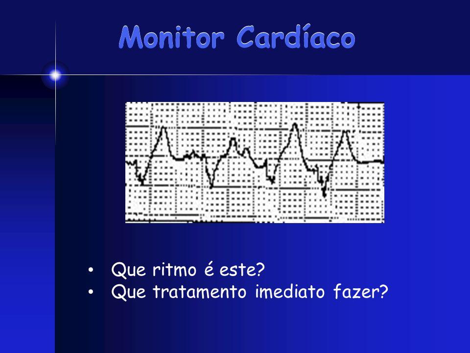 Monitor Cardíaco Que ritmo é este? Que tratamento imediato fazer?
