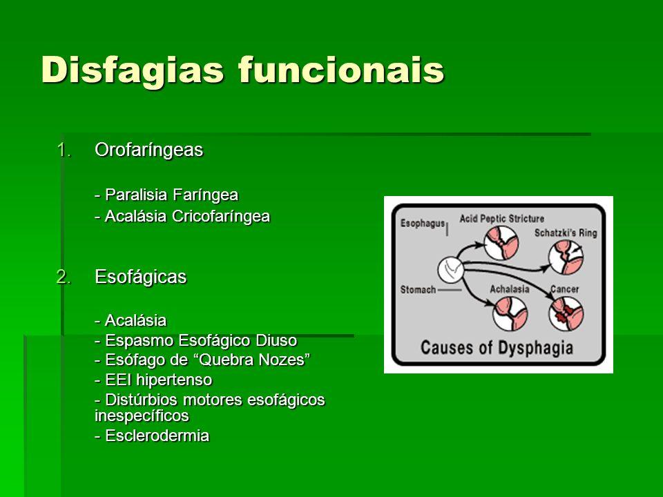 Disfagias funcionais 1.Orofaríngeas - Paralisia Faríngea - Acalásia Cricofaríngea 2.Esofágicas - Acalásia - Espasmo Esofágico Diuso - Esófago de Quebr