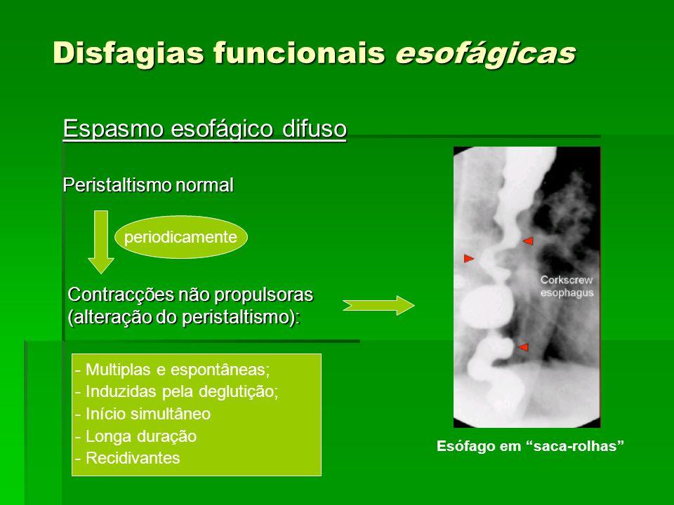 Disfagias funcionais esofágicas Espasmo esofágico difuso Peristaltismo normal periodicamente Contracções não propulsoras (alteração do peristaltismo):