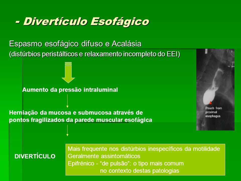 - Divertículo Esofágico Espasmo esofágico difuso e Acalásia (distúrbios peristálticos e relaxamento incompleto do EEI) Aumento da pressão intraluminal