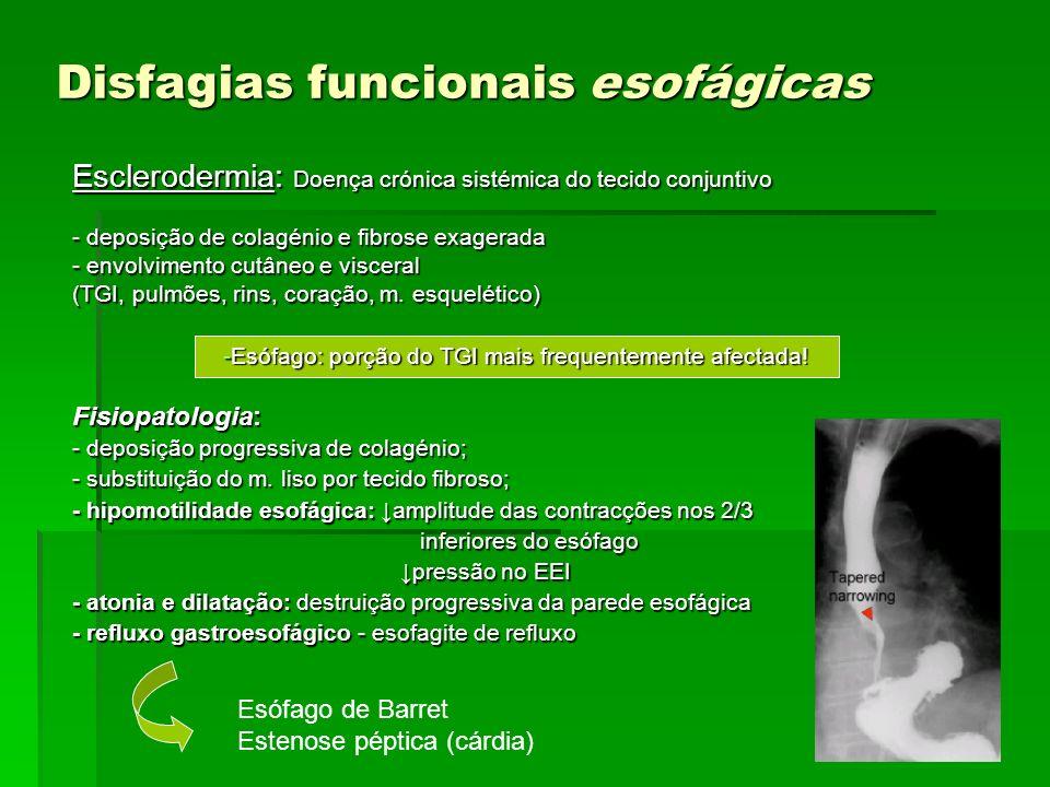 Disfagias funcionais esofágicas Esclerodermia: Doença crónica sistémica do tecido conjuntivo - deposição de colagénio e fibrose exagerada - envolvimen