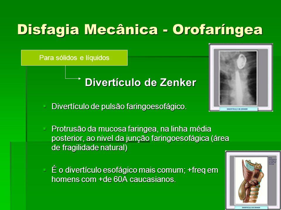 Disfagia Mecânica - Orofaríngea Divertículo de Zenker Divertículo de Zenker Divertículo de pulsão faringoesofágico. Divertículo de pulsão faringoesofá