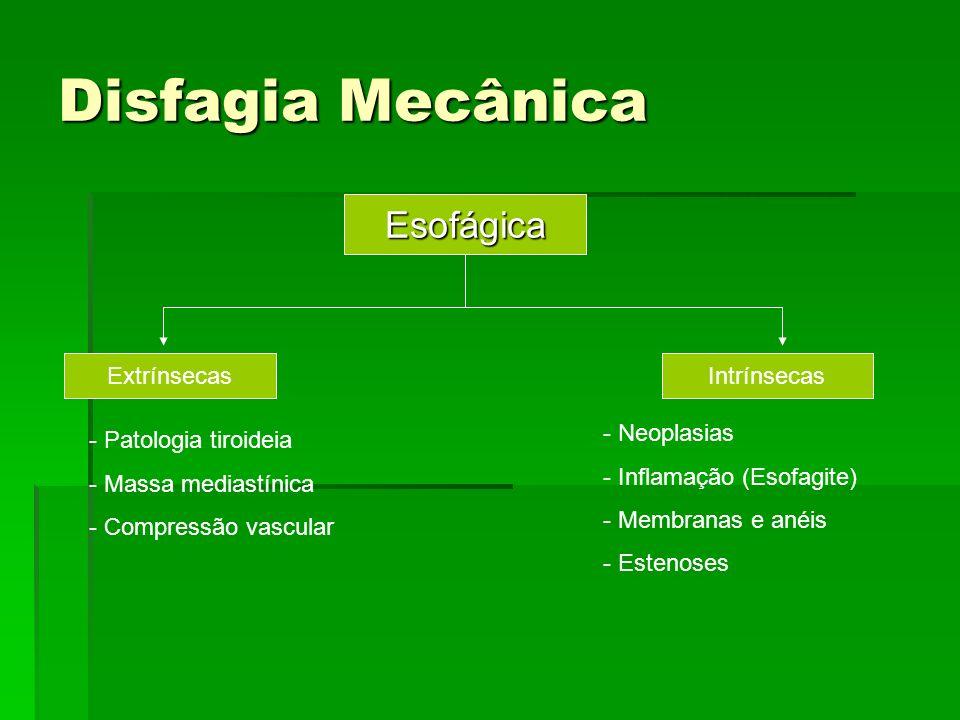 Disfagia Mecânica Esofágica ExtrínsecasIntrínsecas - Patologia tiroideia - Massa mediastínica - Compressão vascular - Neoplasias - Inflamação (Esofagi
