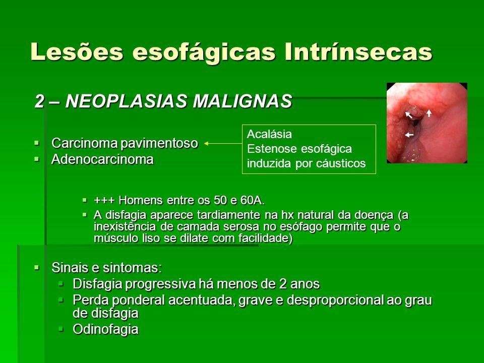 Lesões esofágicas Intrínsecas 2 – NEOPLASIAS MALIGNAS Carcinoma pavimentoso Carcinoma pavimentoso Adenocarcinoma Adenocarcinoma +++ Homens entre os 50