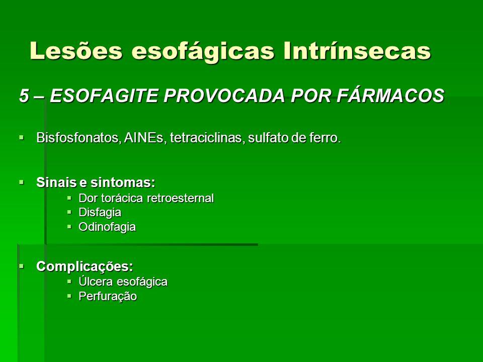 Lesões esofágicas Intrínsecas 5 – ESOFAGITE PROVOCADA POR FÁRMACOS Bisfosfonatos, AINEs, tetraciclinas, sulfato de ferro. Bisfosfonatos, AINEs, tetrac