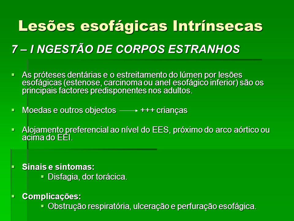 Lesões esofágicas Intrínsecas 7 – I NGESTÃO DE CORPOS ESTRANHOS As próteses dentárias e o estreitamento do lúmen por lesões esofágicas (estenose, carc