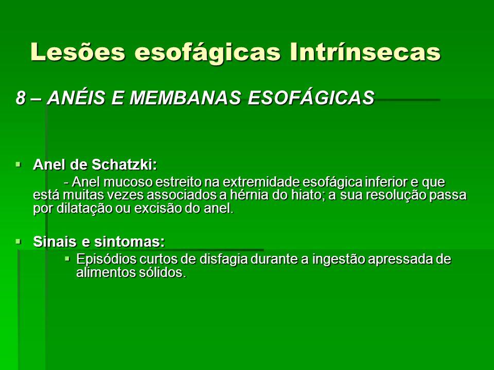 Lesões esofágicas Intrínsecas 8 – ANÉIS E MEMBANAS ESOFÁGICAS Anel de Schatzki: Anel de Schatzki: - Anel mucoso estreito na extremidade esofágica infe