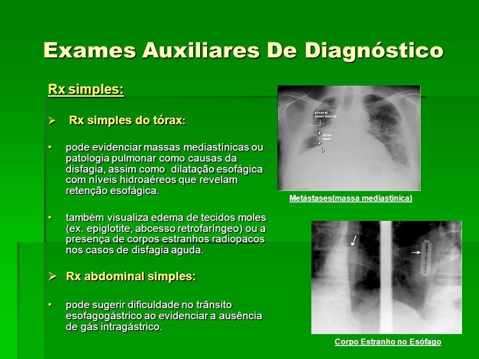 Exames Auxiliares De Diagnóstico Rx simples: Rx simples do tórax : Rx simples do tórax : pode evidenciar massas mediastínicas ou patologia pulmonar co