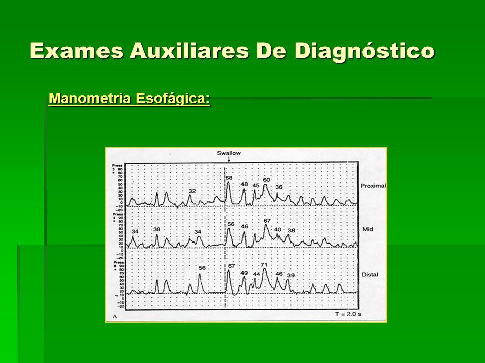 Exames Auxiliares De Diagnóstico Manometria Esofágica: